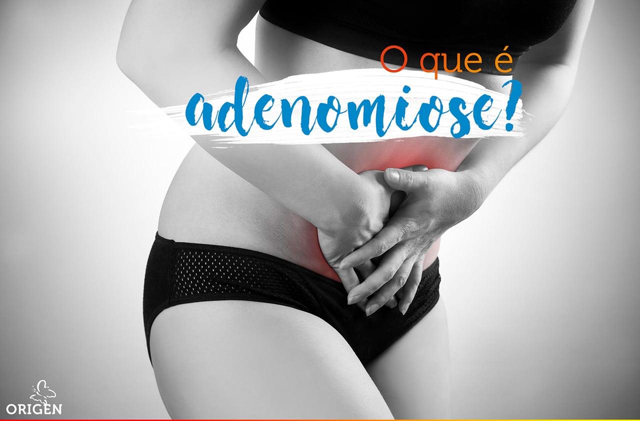 O que é adenomiose? Descubra tudo sobre essa condição!