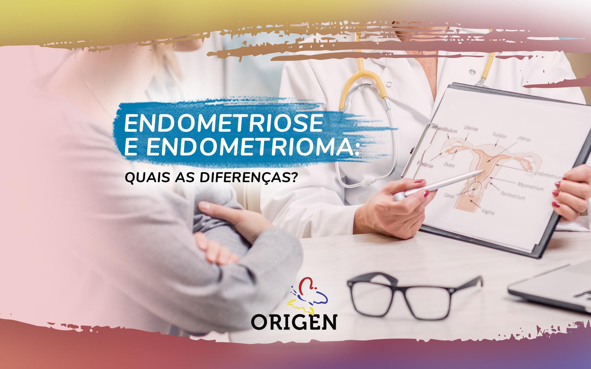 Endometriose e endometrioma: quais as diferenças?